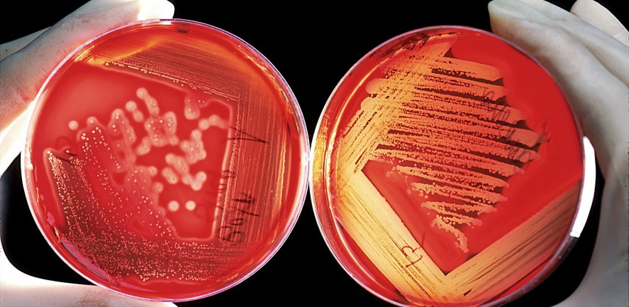 Photo of hands holding two plates of agar, both covered in colonies of some unspecified microorganism